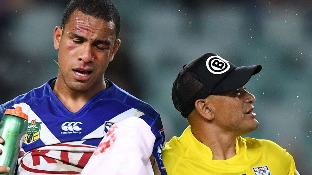 Hopoate plays Sundays in non-perfect world