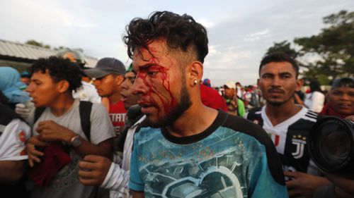 A man wounded during the confrontation between the Central American migrants of the second caravan heading to the United States with the police, in Tecun Uman, Guatemala.