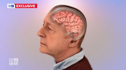 Sydney clinic trialling treatment for early Alzheimer's disease