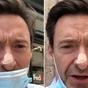 Hugh Jackman urges fans to wear sunscreen after getting skin biopsy