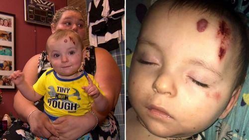 One-year-old Xavier Cox had a large graze and was bleeding from his forehead.