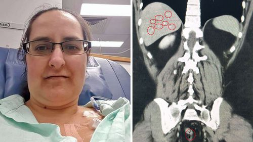 Ms Parkinson's cancer has spread from her colon to her liver.