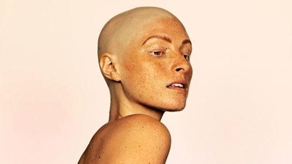 Model Amber Jean Rowan's entire head of hair fell out in a year