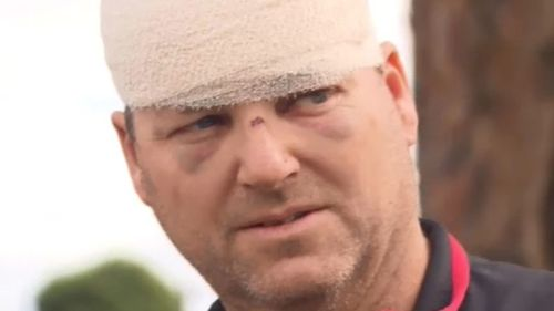 Malcolm Woodford spoke to 9NEWS following the brutal attack. Picture: 9NEWS