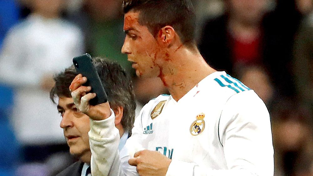 Football: Cristiano Ronaldo checks on bloody face after copping boot to the face in Real Madrid win