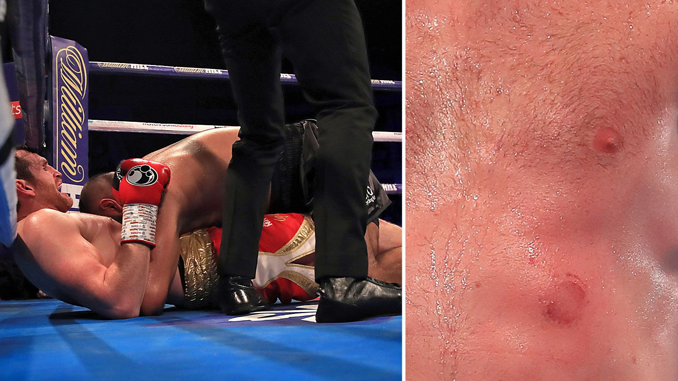 Heavyweight boxer Kash Ali disqualified for biting opponent