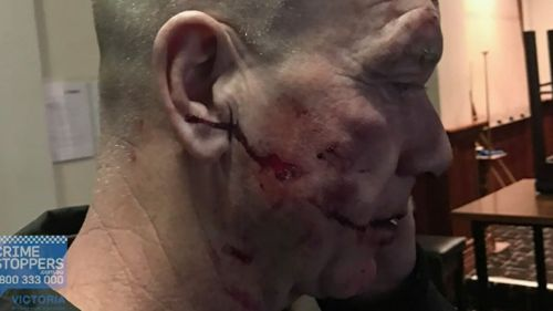 The Essendon grandfather required multiple surgeries following the attack. (Supplied)