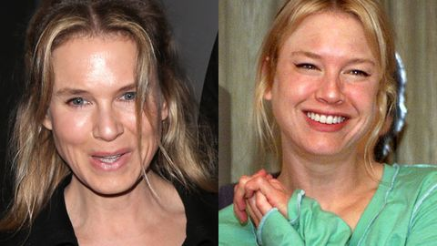 Stunned mullet! Renee Zellweger's face looks unrecognisable