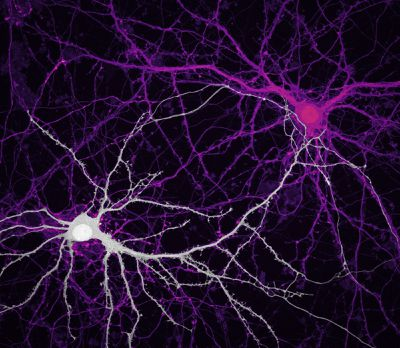Connections between hippocampal neurons