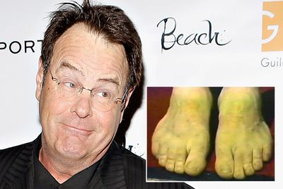 Dan Akroyd is also the proud owner of webbed toes.