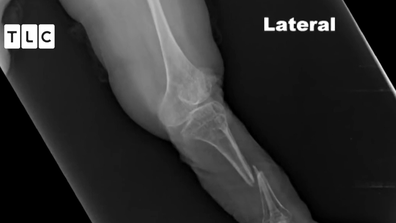 The painful fractures make it hard for Ms Amge to walk.