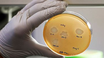 A petri dish containing the Pseudomonas aeruginosa lung samples grown from patient.