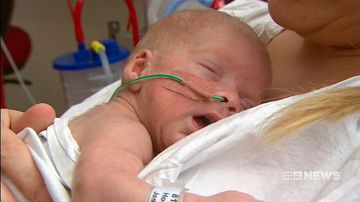 VIDEO: Skin-to-skin care may be best for very premature babies