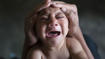 A baby suffering from microcephaly in Brazil. (AAP)