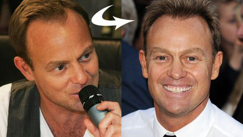 Jason Donovan admits to hair transplant