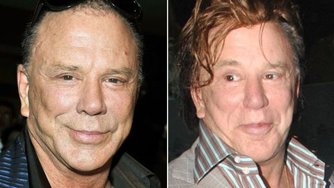 Saving face: Mickey Rourke shows off plastic surgery aftermath