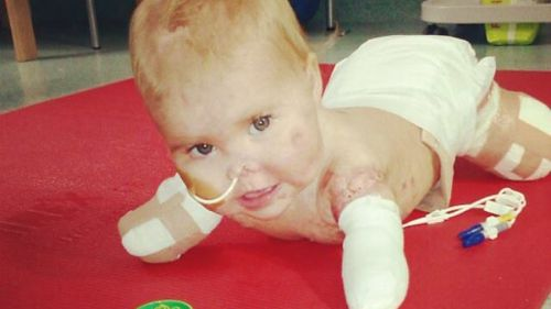 Harmonie-Rose lost all four of her limbs and the tip of her nose after contracting meningitis. (Facebook: Hope for Harmonie)