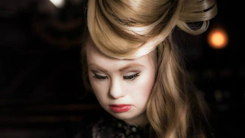 The model hopes to break down stigmas surrounding those with disabilities. (Facebook)