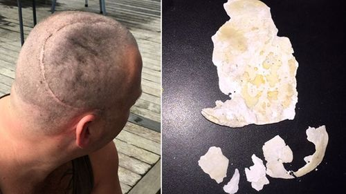 Benjamin Lightbody lost a large chunk of his skull after an attack in Mt Eden Prison.