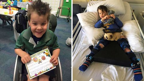 Before taking cannabis oil, Archer was having at least two seizures a day.
