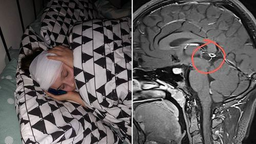 Amelia, 15, has a rare 10mm by 11mm pineal tumour at the centre of her brain that needs urgent surgery to remove.