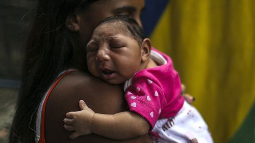 A baby with microcephaly, thought to be caused by Zika. (AFP file image)