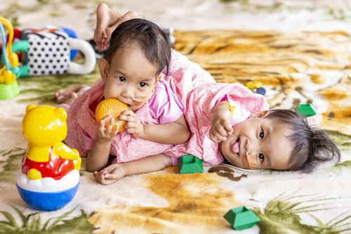 Conjoined twins Nima and Dawa are seen at Miracle sMiles Retreat in East Kilmore, Victoria.