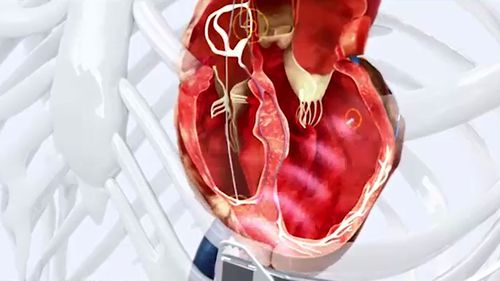The technology uses an electrode placed inside the left ventricle of the heart.