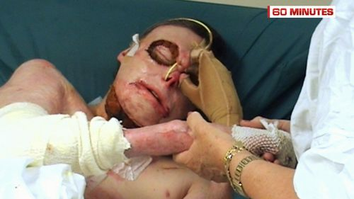 And he was left with life-changing injuries, including deep burns to much of his body. (60 Minutes)