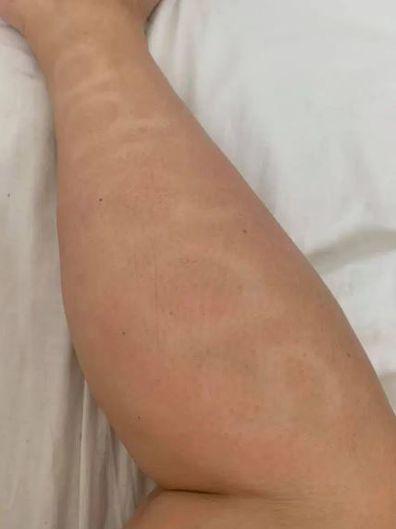 Woman fake tanned 'Adidas' into her leg during coronavirus lockdown.