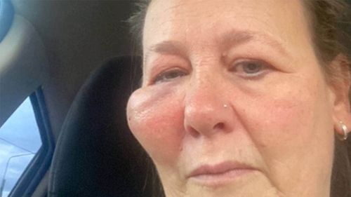 Naomi Cooke's right cheek swelled to the size of a golf ball after she was hit with a flying disc.