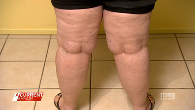 The painful, little-known disease being passed off as obesity