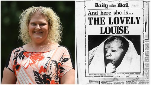Louise Brown was the world's first IVF baby. Pictures: AAP