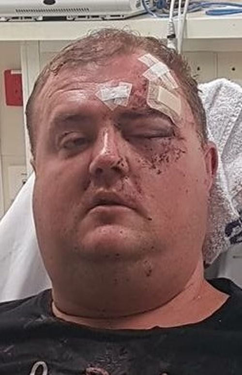 The victim was taken to hospital with serious facial injuries. (Victoria Police)