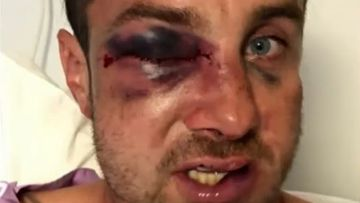 Father claims son 'rounded up by wolves' in football fight