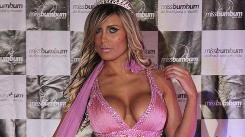 'Miss BumBum' contestant in serious condition after botched cosmetic surgery