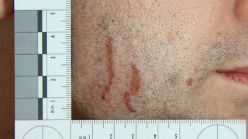A close-up photo of scratches on Gerard Baden-Clay's face.