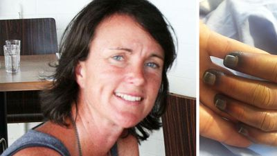 Byron Bay woman facing amputations after contracting malaria speaks out