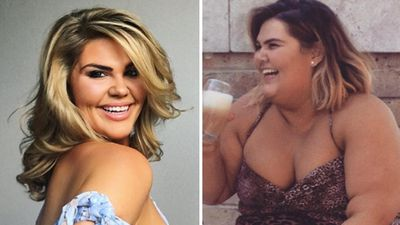 Daniel MacPherson's sister loses five dress sizes through gastric sleeve surgery
