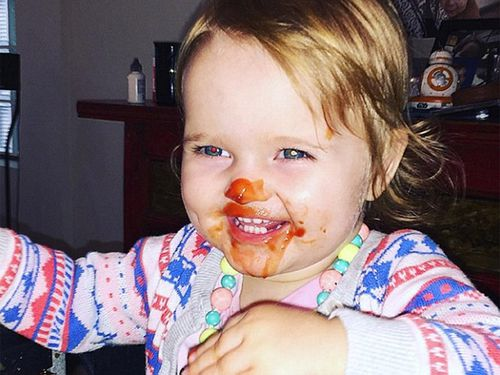 Social media users warn David Campbell's daughter shows sign of eye cancer