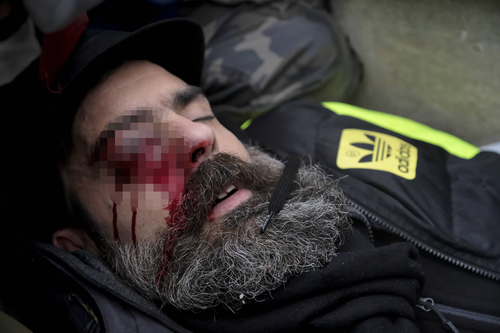 French police are investigating how a prominent yellow vest protester, Jerome Rodrigues, suffered an eye injury in Paris.