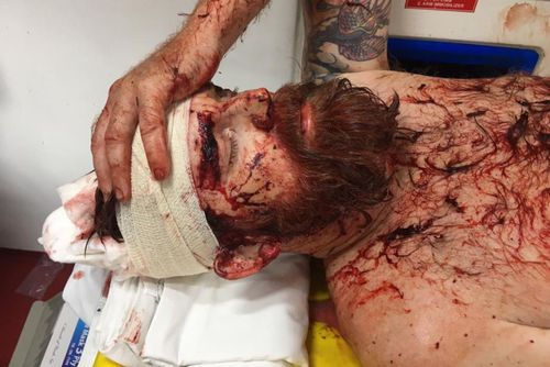 Daniel Broadhurst has been attacked with a machete in Borneo.