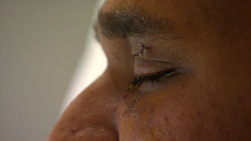 The victim had blood gushing from his eye and was rushed to hospital for emergency surgery.