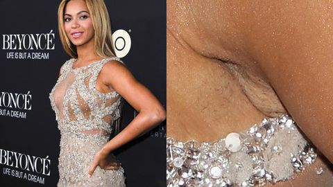 Whoops! Beyonce forgets to shave armpits for premiere, still looks amazing