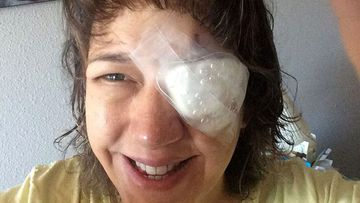Woman goes blind in one eye after swimming in contact lenses