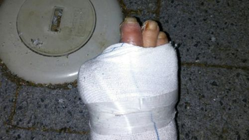 He thought he was going in to have an infected ulcer cleared when doctors decided his toe needed to be amputated. (Supplied)