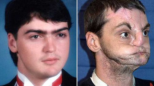 Richard Norris before and after his accident. (Source: AAP/University of Maryland Medical Centre)