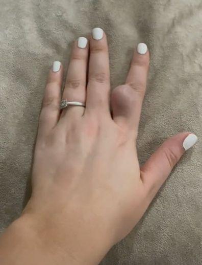 Cyst on finger TikTok