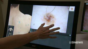 University of Queensland melanoma cancer drug discovery