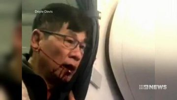 VIDEO: United passenger suing airline after on-board incident